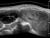 Ultrassonografia da Doença Trofoblástica Gestacional
